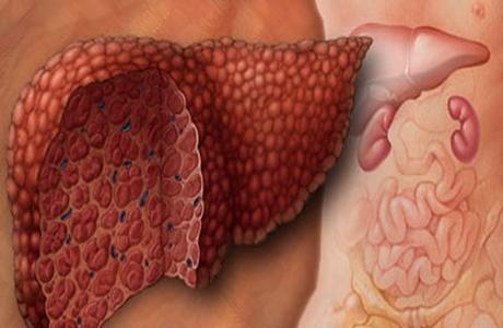 Лечение гепатита Ц